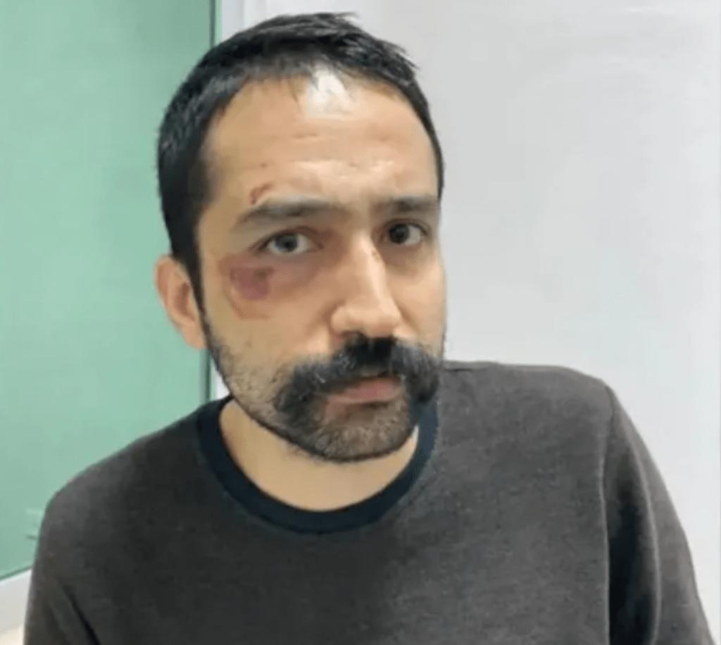 Aytaç Unsal golpeado